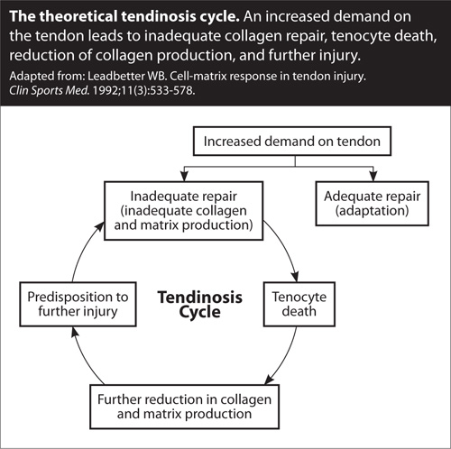 tendinosis treatment