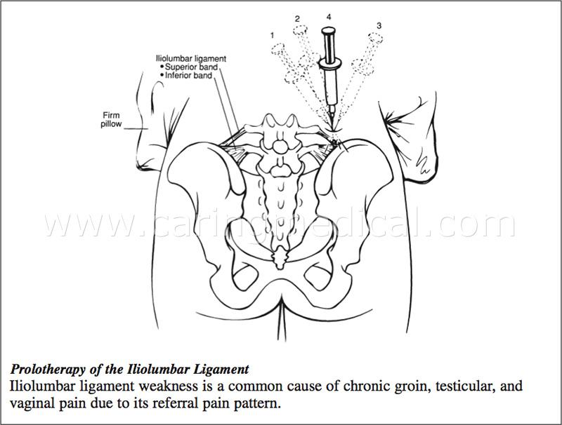 Iliolumbar.ligament.injection