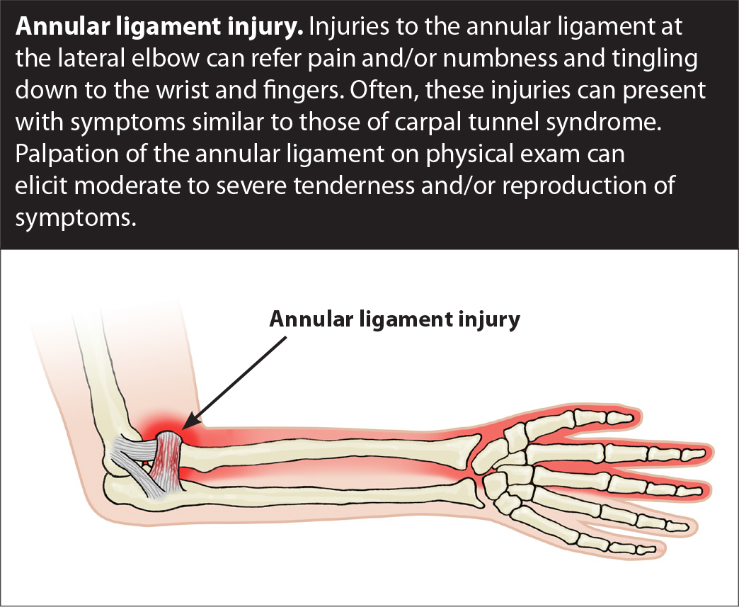 Elbow Pain Ulnar Collateral Ligament Sprain Getprolo