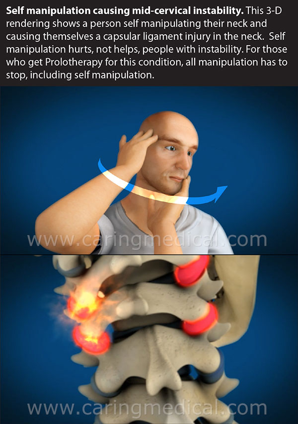 spinal manipulation and cervical retrolisthesis Spinal disc herniation in the cervical spinal cord moderate quality evidence suggests that spinal manipulation is more effective than placebo for the.