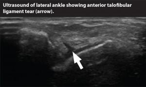 ultrasound.ankle tear