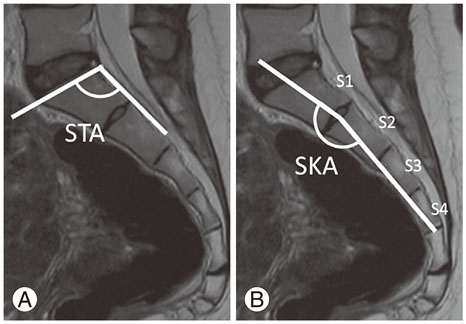 Pelvic and Spinal instability from the facet joint