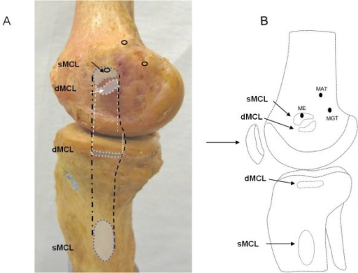 Morphology of the medial collateral ligament of the knee. Liu F, Yue B, Gadikota HR, Kozanek M, Liu W, Gill TJ, Rubash HE, Li G - J Orthop Surg Res (2010)