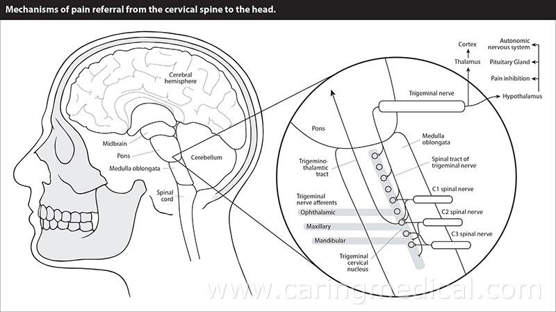 Chronic Neck Pain - Cervical Neck Instability