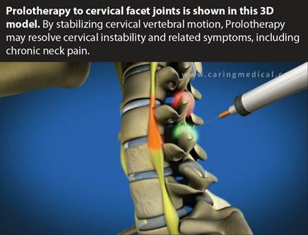 Prolotherapy neck pain
