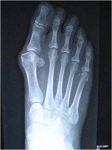 Prolotherapy Bunions