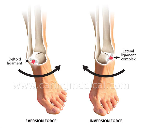 ankle ligament instability
