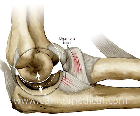 elbow instability