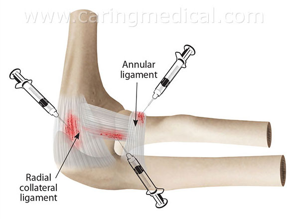 elbow Prolotherapy