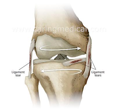 knee instability