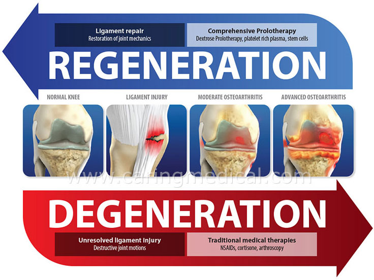 regeneration vs. degenerative arthritis
