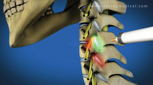 prolotherapy facet joints