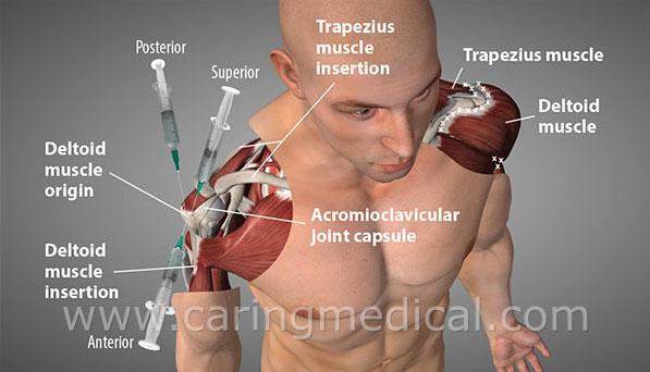 prolotherapy top shoulder