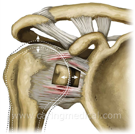 shoulder instability