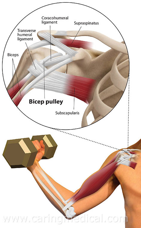 shoulder ligaments prolotherapy