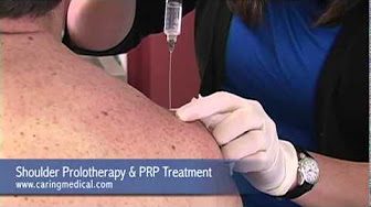 Prolotherapy with PRP treatment for shoulder pain