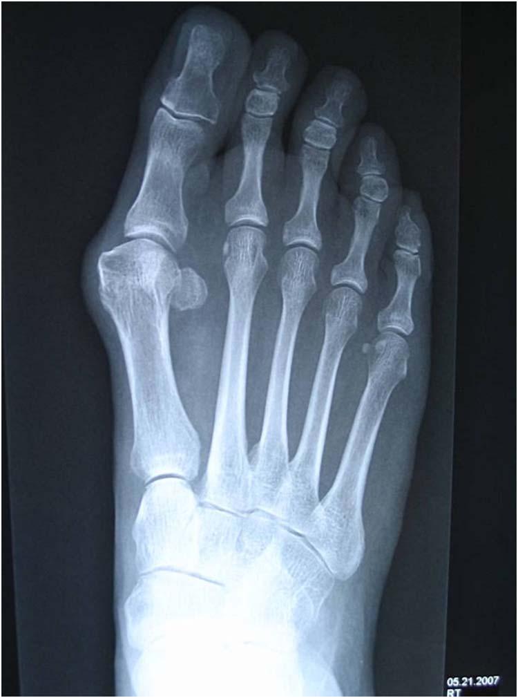 valgus deformity toe