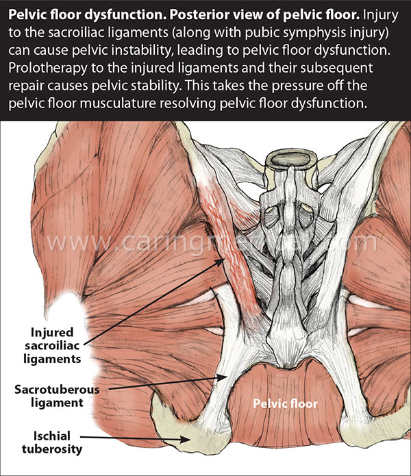Superior Pelvic.floor.pain