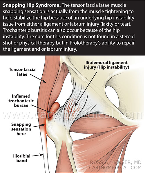The snapping sensation in the front or the outer side of the hip occurs from a tightness or tensing of the iliopsoas muscle or the tensor fascia latae muscle. The muscles are compensating for ligament weakness or labral tear causing hip instability.