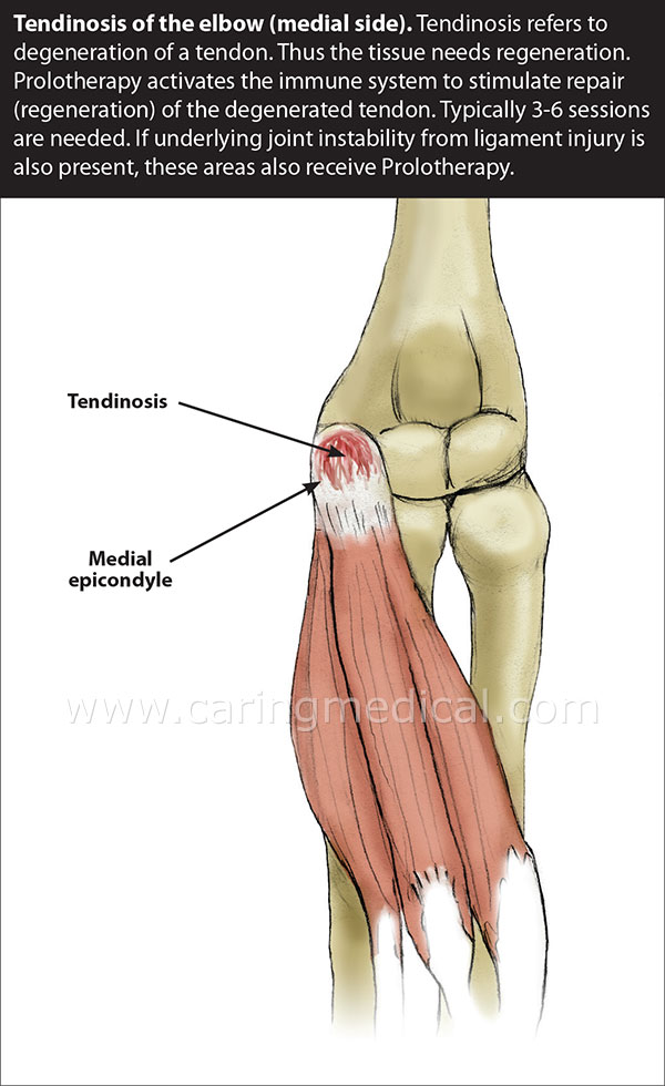 Tendinitis And Tendinosis Treatments Injections For Chronic
