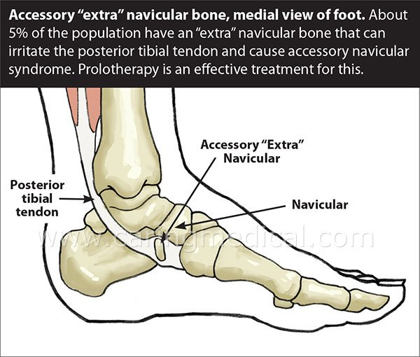 accessory navicular syndrome – caring medical, Human Body