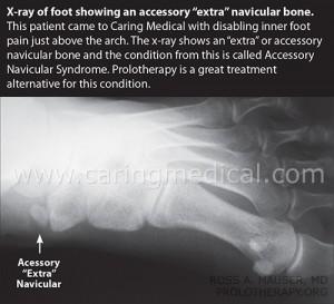 Extra-Navicular-Bone-Figure-CM
