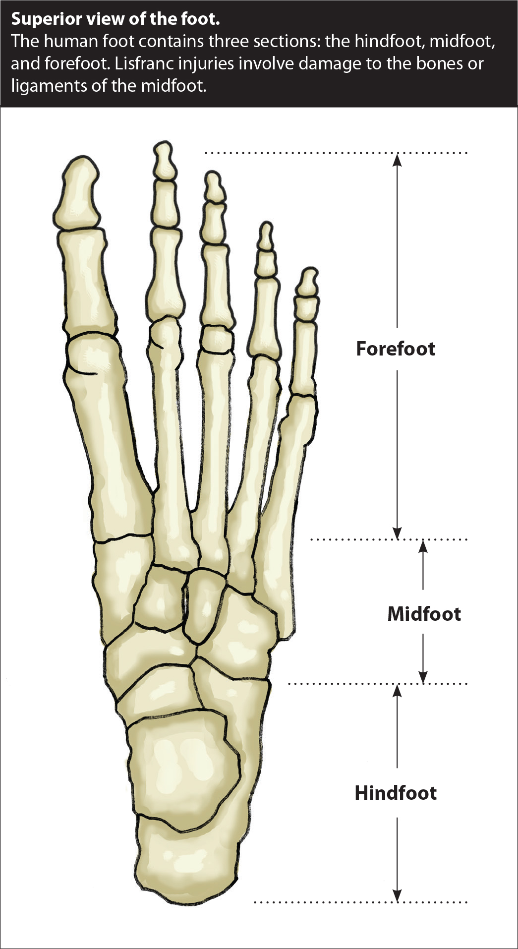 Prolotherapy For Lisfranc Injuries Caring Medical