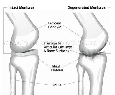 Meniscus repair failure - Arthroscopic meniscus surgery