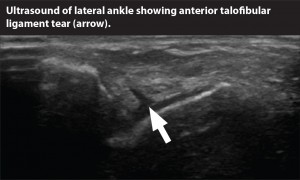 ultrasound.ankle tear
