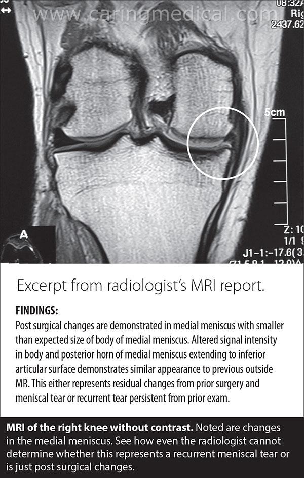 MRI Knee Meniscus