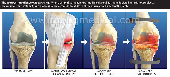 Arthroscopic knee surgery for osteoarthritis