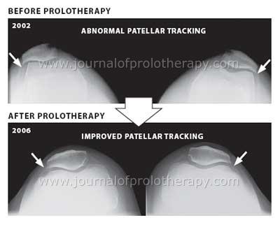 Patellar tracking disorder