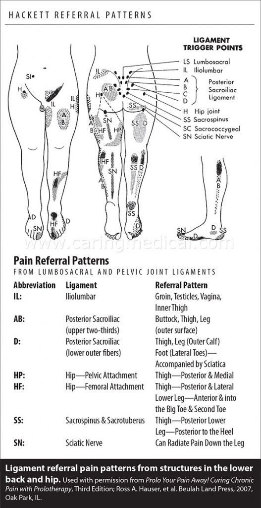 Ligament Pain Referral Patternss
