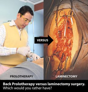 Prolotherapy vs. Surgery
