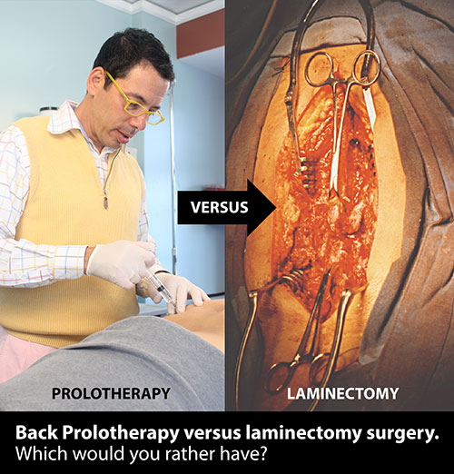 Failed back surgery syndrome prolotherapy