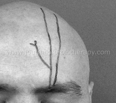 Trigeminal Neuralgia nerve diagram
