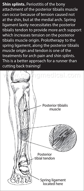Shin Splints Prolotherapy