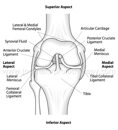 Prolotherapy For Meniscus Tears Caring Medical