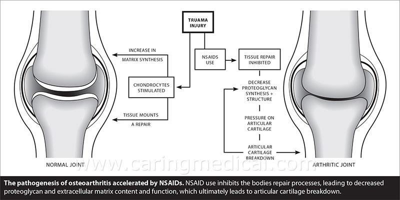 NSAIDs Accelerate Osteoarthritis