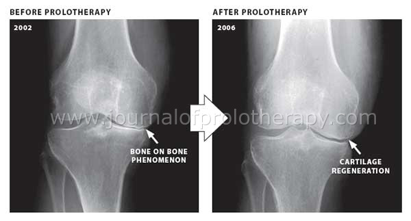 Cartilage Regeneration in Five Degenerated Knees After Prolotherapy