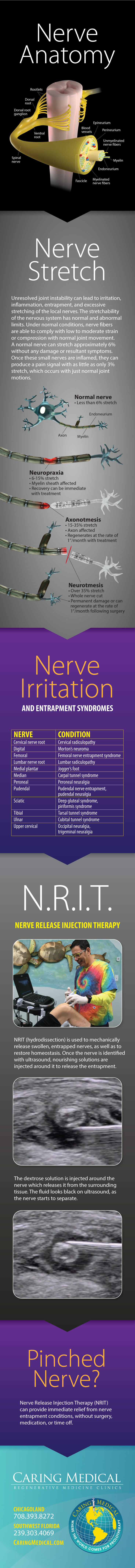 Nerve Release Injection Therapy