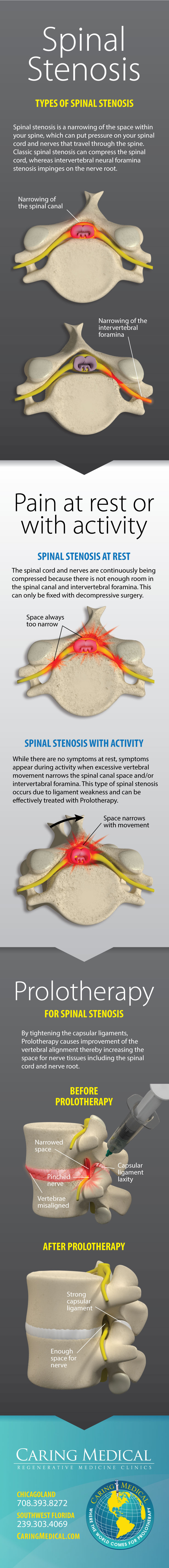 Spinal Stenosis Infographic