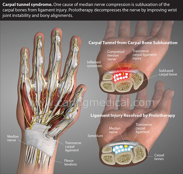 carpal tunnel syndrome, wrist, median nerve, hydrodissection, nerve release, NRIT, prolotherapy, carpal