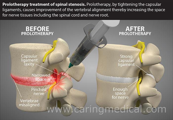 Spinal Stenosis Prolotherapy