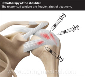 Shoulder Prolotherapy
