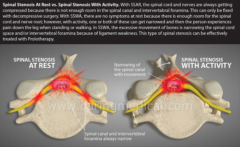 Spinal Stenosis at Rest and with Movement