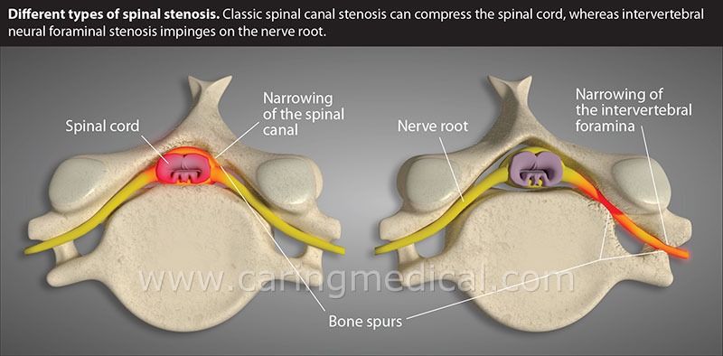 Non-surgical treatment options for lumbar spinal stenosis