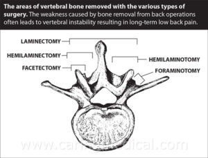 Post-laminectomy syndrome