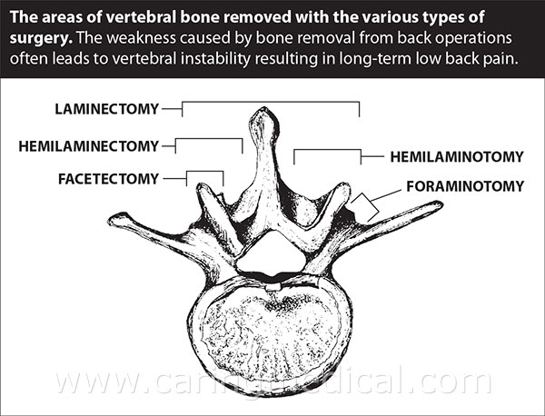This illustration demonstrates the areas of the vertebral bone bone removed with the various types of spinal surgery. Here we can see that typically, the most bone is removed in a laminectomy procedure as compared to a hemilaminectomy, Hemi meaning one side, or hemilaminotomy. Facetectomy, or Foraminotomy.