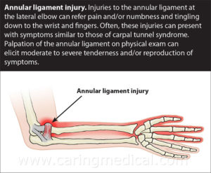 carpal tunnel, elbow ligament, annular, prolotherapy, elbow injury, numbness